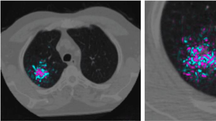 يكشف هذا الذكاء الاصطناعي عن سرطان الرئة بوتيرة أسرع وأكثر دقة وموثوقية