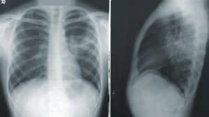 شبكة عصبونية تساعد في كشف الإصابة بكوفيد-19 في صور الأشعة السينية للصدر