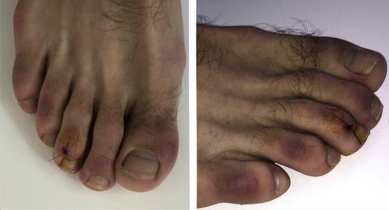 أعراض جديدة في أصابع الأقدام قد تكون من علامات الإصابة بفيروس كورونا