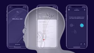 نيورالينك: مشروع إيلون ماسك الجديد الهادف لربط الدماغ البشري بالذكاء الاصطناعي